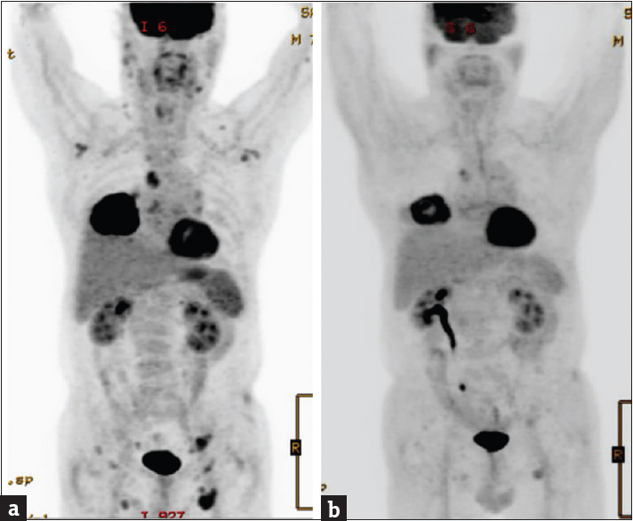 Figure 11: Metastatic non-small cell lung cancer; (cT2 cN2 Mx stage IIIB); (a) Before therapy. (b) After therapy. The distant metastases disappeared while the primary tumor showed a partial response